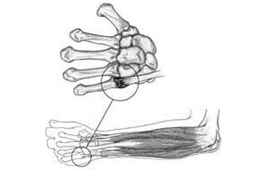 Wrist-injury