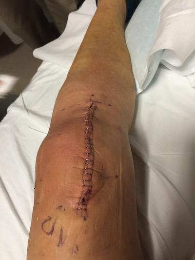 Knee replacement-4